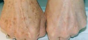 naturopath-coquitlam-scar-removal